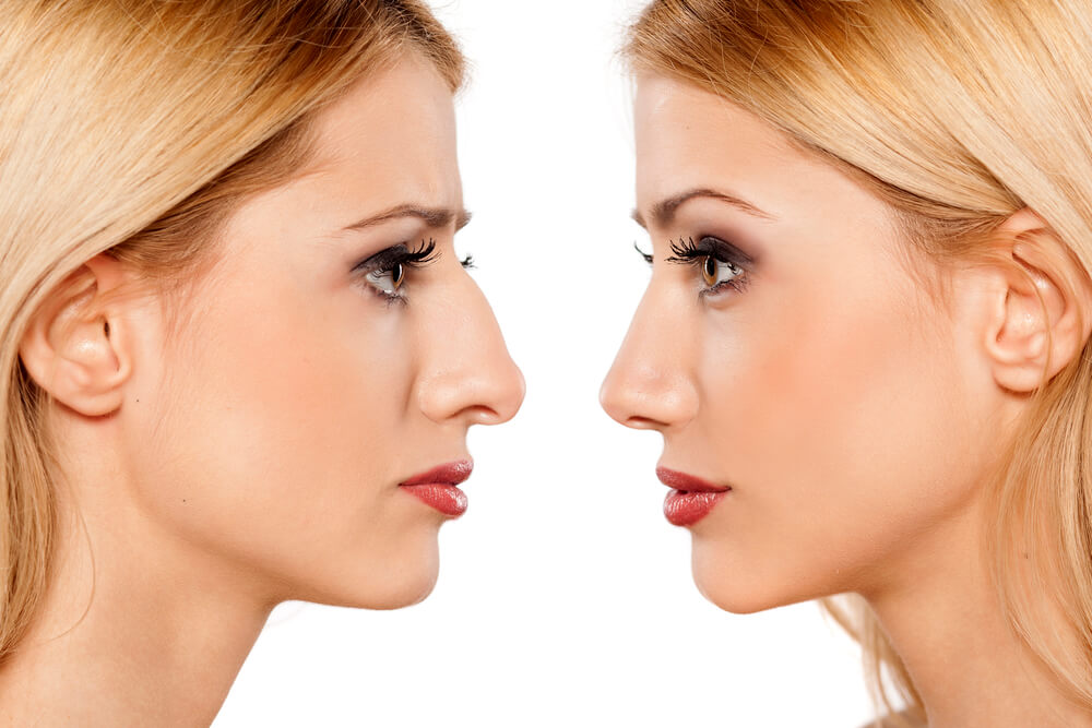 rhinoplasty alternative