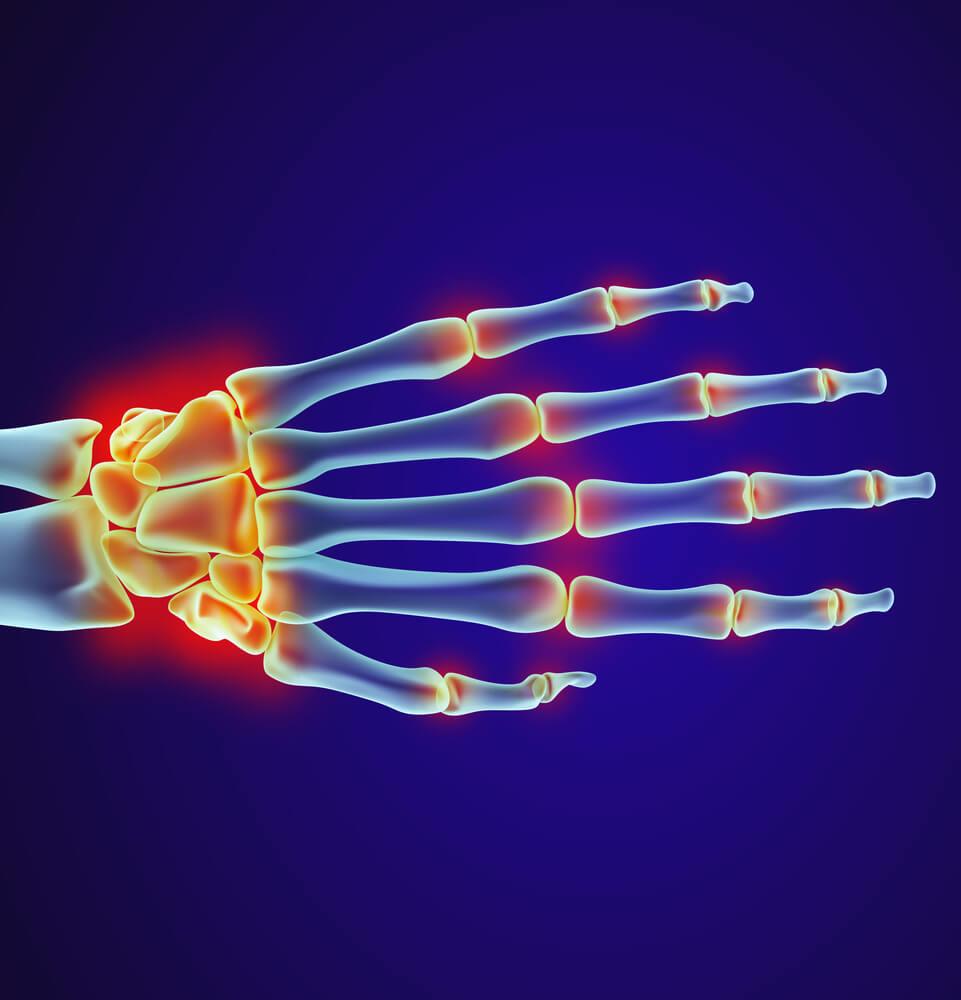 triquetral fracture